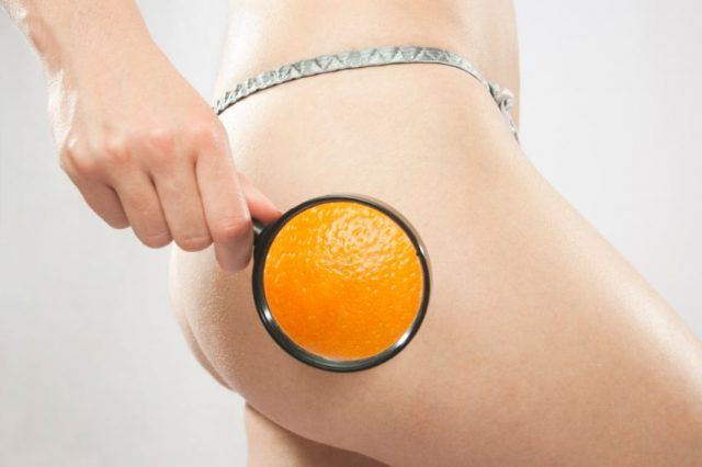 Cellulite: il nemico numero uno di ogni donna